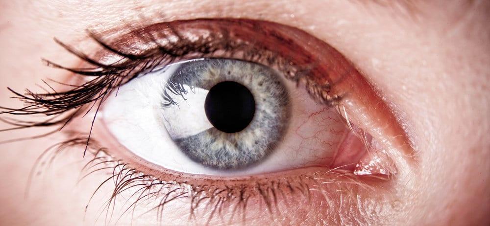 Retinal Migraine